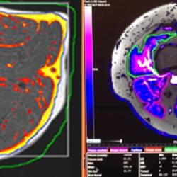 Muscle-MRI