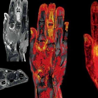 Psoriasis-Dynamika-MRI