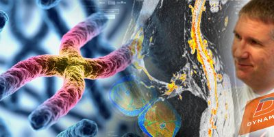 IAG-Cell-Gene-Therapy-Webinar-Advanced-Imaging